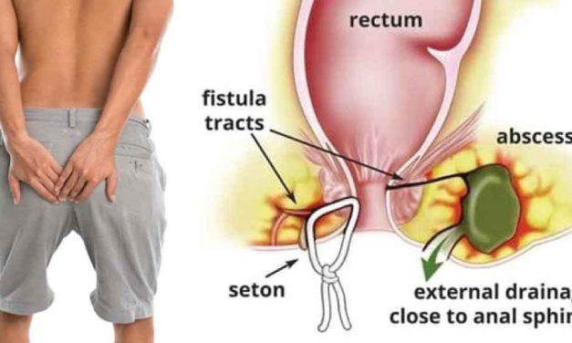 Pengertian dan Penyebab Fistula Ani